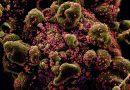 COVID-19 – Lições da primeira grande pandemia do século XXI, por Alessandro Castanha, biólogo da Uninter